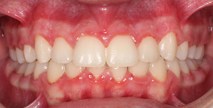 Teeth crowding after Orthodontic treatment which required teeth removed and adult upper and lower braces